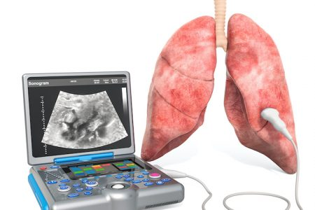 Lung Ultrasound concept. Human lung with medical ultrasound diagnostic machine, 3D rendering isolated on white background